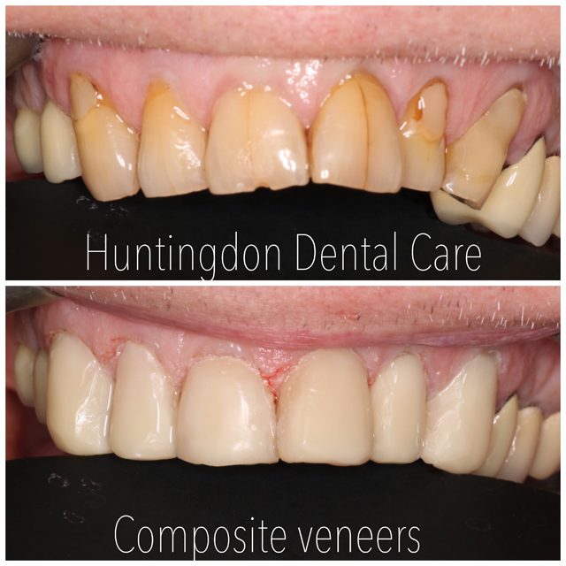 Composite veneers and bonding 7