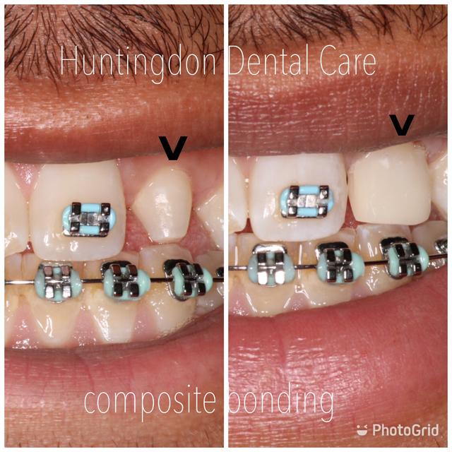 Composite veneers and bonding 8