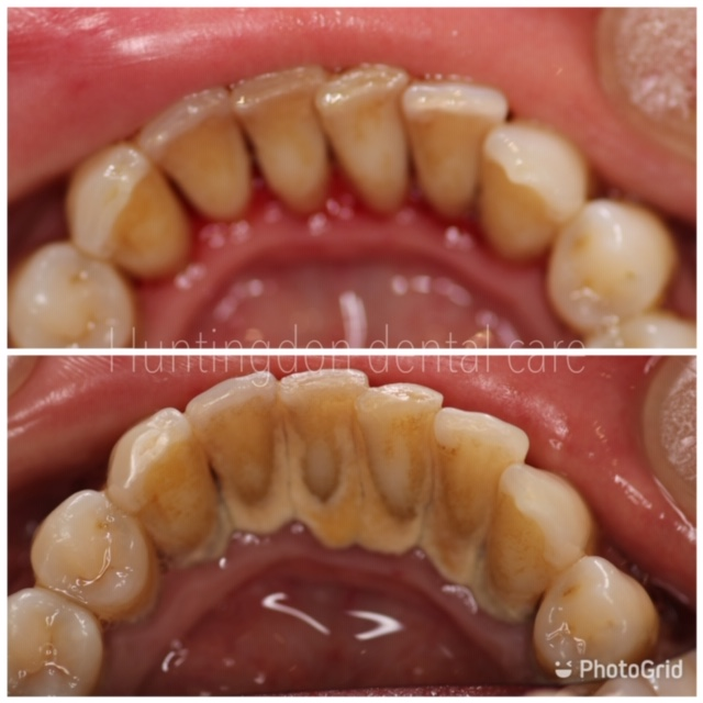 Dental Hygiene and stain removal 2