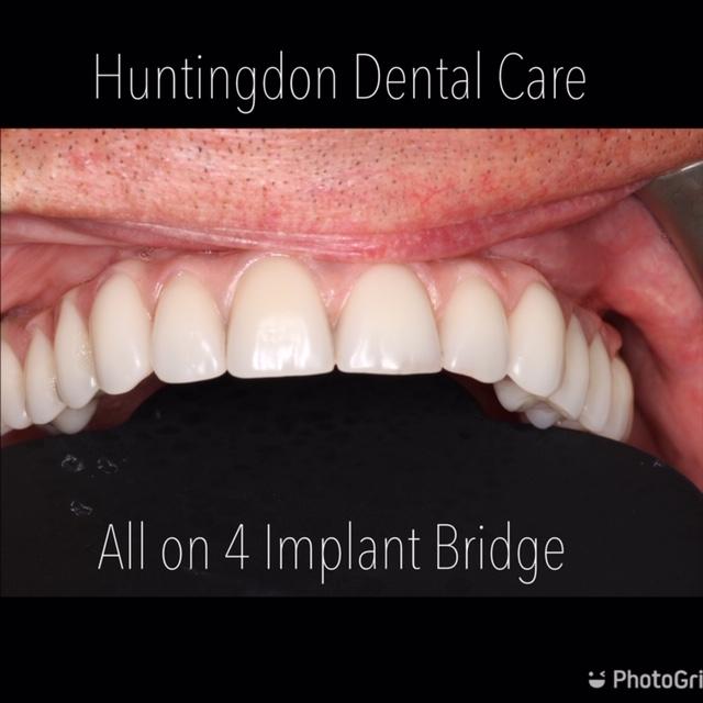 Dental Implants - All on 4 bridge