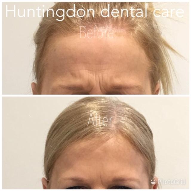 Facial Aesthetics anti-wrinkle treatment 1