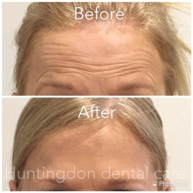 Facial Aesthetics anti-wrinkle treatment 2