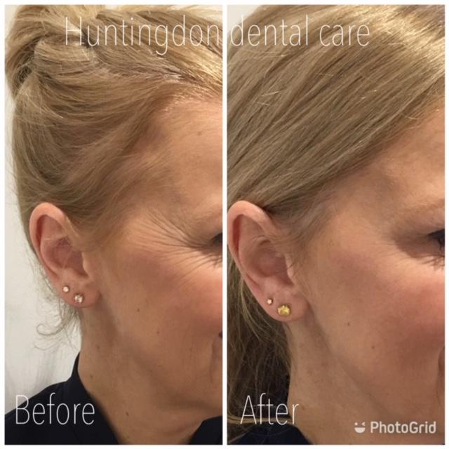 Facial Aesthetics anti-wrinkle treatment 3