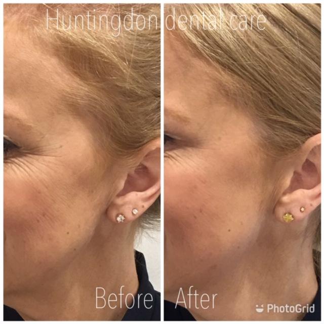 Facial Aesthetics anti-wrinkle treatment 4