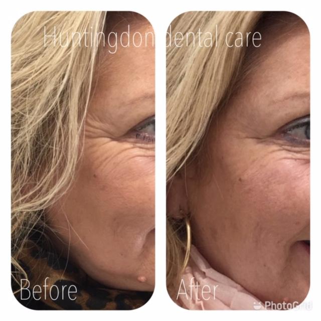 Facial Aesthetics anti-wrinkle treatment 5