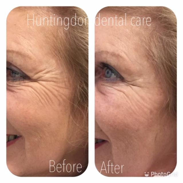 Facial Aesthetics anti-wrinkle treatment 6