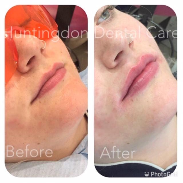 Facial Aesthetics - lip dermal fillers