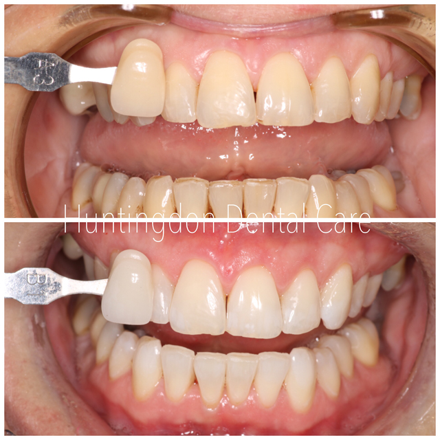 Teeth Whitening 2