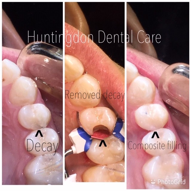 Tooth coloured composite fillings 3