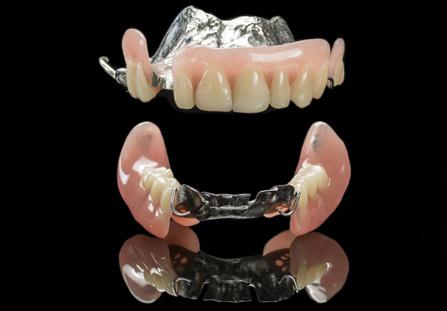 chrome-dentures